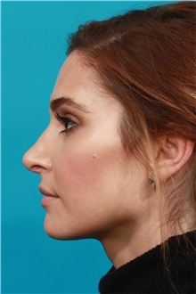 Rhinoplasty After Photo by Michael Bogdan, MD, MBA, FACS; Southlake, TX - Case 32025