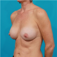 Breast Augmentation After Photo by Michael Bogdan, MD, MBA, FACS; Grapevine, TX - Case 32036