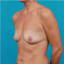 Breast Augmentation Before Photo by Michael Bogdan, MD, MBA, FACS; Grapevine, TX - Case 32036