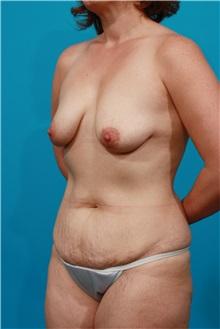 Tummy Tuck Before Photo by Michael Bogdan, MD, MBA, FACS; Grapevine, TX - Case 32040