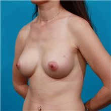Breast Augmentation After Photo by Michael Bogdan, MD, MBA, FACS; Grapevine, TX - Case 32043
