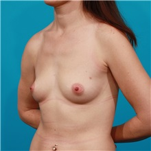 Breast Augmentation Before Photo by Michael Bogdan, MD, MBA, FACS; Grapevine, TX - Case 32043
