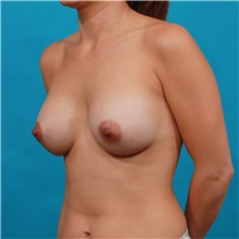 Breast Augmentation After Photo by Michael Bogdan, MD, MBA, FACS; Southlake, TX - Case 32045