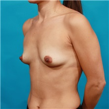 Breast Augmentation Before Photo by Michael Bogdan, MD, MBA, FACS; Southlake, TX - Case 32045