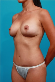Tummy Tuck After Photo by Michael Bogdan, MD, MBA, FACS; Grapevine, TX - Case 32047