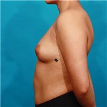 Breast Augmentation Before Photo by Michael Bogdan, MD, MBA, FACS; Southlake, TX - Case 32049