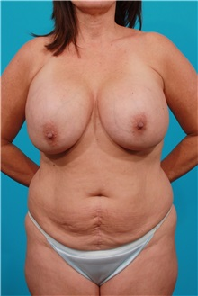 Tummy Tuck Before Photo by Michael Bogdan, MD, MBA, FACS; Southlake, TX - Case 32051