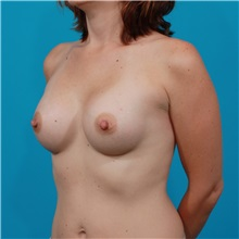 Breast Augmentation After Photo by Michael Bogdan, MD, MBA, FACS; Southlake, TX - Case 32056