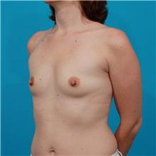 Breast Augmentation Before Photo by Michael Bogdan, MD, MBA, FACS; Southlake, TX - Case 32056
