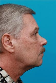 Eyelid Surgery After Photo by Michael Bogdan, MD, MBA, FACS; Southlake, TX - Case 32060