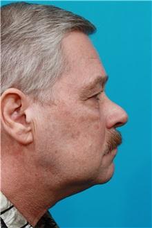 Eyelid Surgery Before Photo by Michael Bogdan, MD, MBA, FACS; Southlake, TX - Case 32060