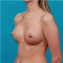 Breast Augmentation After Photo by Michael Bogdan, MD, MBA, FACS; Southlake, TX - Case 32063