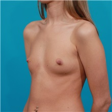 Breast Augmentation Before Photo by Michael Bogdan, MD, MBA, FACS; Southlake, TX - Case 32063