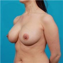 Breast Augmentation After Photo by Michael Bogdan, MD, MBA, FACS; Southlake, TX - Case 32067