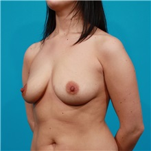 Breast Augmentation Before Photo by Michael Bogdan, MD, MBA, FACS; Southlake, TX - Case 32067