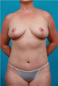 Tummy Tuck After Photo by Michael Bogdan, MD, MBA, FACS; Southlake, TX - Case 32070