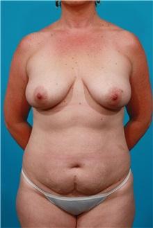 Tummy Tuck Before Photo by Michael Bogdan, MD, MBA, FACS; Southlake, TX - Case 32070