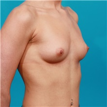 Breast Augmentation Before Photo by Michael Bogdan, MD, MBA, FACS; Southlake, TX - Case 32071