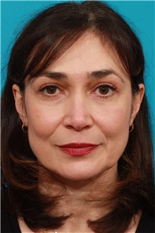 Brow Lift After Photo by Michael Bogdan, MD, MBA, FACS; Southlake, TX - Case 32078