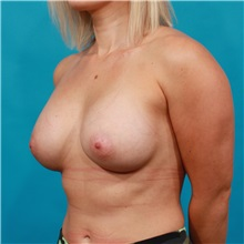Breast Augmentation After Photo by Michael Bogdan, MD, MBA, FACS; Southlake, TX - Case 32080