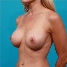 Breast Augmentation After Photo by Michael Bogdan, MD, MBA, FACS; Southlake, TX - Case 32081