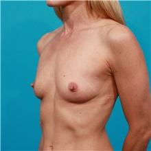 Breast Augmentation Before Photo by Michael Bogdan, MD, MBA, FACS; Southlake, TX - Case 32081