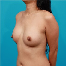 Breast Augmentation After Photo by Michael Bogdan, MD, MBA, FACS; Southlake, TX - Case 32082