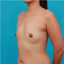 Breast Augmentation Before Photo by Michael Bogdan, MD, MBA, FACS; Southlake, TX - Case 32082