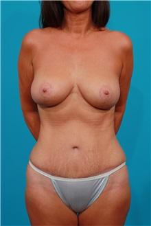 Tummy Tuck After Photo by Michael Bogdan, MD, MBA, FACS; Southlake, TX - Case 32083