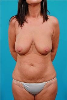 Tummy Tuck Before Photo by Michael Bogdan, MD, MBA, FACS; Southlake, TX - Case 32083