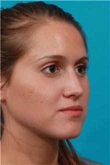 Rhinoplasty After Photo by Michael Bogdan, MD, MBA, FACS; Southlake, TX - Case 32085