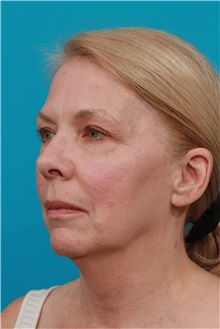 Facelift Before Photo by Michael Bogdan, MD, MBA, FACS; Southlake, TX - Case 32090