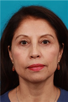 Eyelid Surgery After Photo by Michael Bogdan, MD, MBA, FACS; Southlake, TX - Case 32240