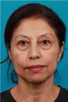Eyelid Surgery Before Photo by Michael Bogdan, MD, MBA, FACS; Southlake, TX - Case 32240