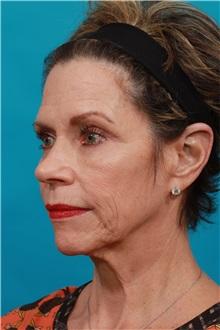 Facelift Before Photo by Michael Bogdan, MD, MBA, FACS; Southlake, TX - Case 32241