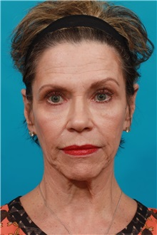 Facelift Before Photo by Michael Bogdan, MD, MBA, FACS; Southlake, TX - Case 32241