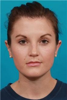 Ear Surgery After Photo by Michael Bogdan, MD, MBA, FACS; Southlake, TX - Case 32245