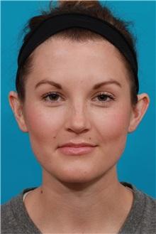 Ear Surgery Before Photo by Michael Bogdan, MD, MBA, FACS; Southlake, TX - Case 32245