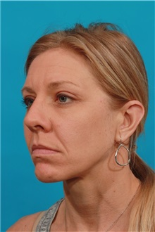 Eyelid Surgery After Photo by Michael Bogdan, MD, MBA, FACS; Southlake, TX - Case 32246