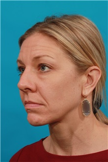 Eyelid Surgery Before Photo by Michael Bogdan, MD, MBA, FACS; Southlake, TX - Case 32246