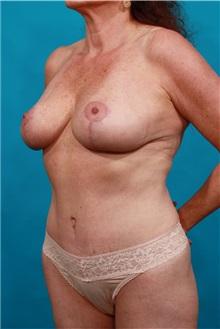 Tummy Tuck After Photo by Michael Bogdan, MD, MBA, FACS; Southlake, TX - Case 32247