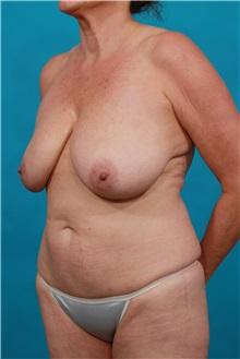 Tummy Tuck Before Photo by Michael Bogdan, MD, MBA, FACS; Southlake, TX - Case 32247