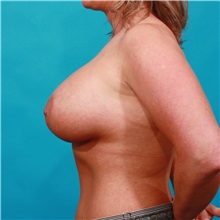 Breast Augmentation After Photo by Michael Bogdan, MD, MBA, FACS; Southlake, TX - Case 32253
