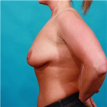 Breast Augmentation Before Photo by Michael Bogdan, MD, MBA, FACS; Southlake, TX - Case 32253