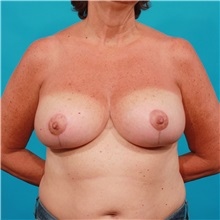 Breast Lift After Photo by Michael Bogdan, MD, MBA, FACS; Southlake, TX - Case 32255