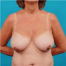 Breast Lift Before Photo by Michael Bogdan, MD, MBA, FACS; Southlake, TX - Case 32255
