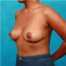 Breast Lift After Photo by Michael Bogdan, MD, MBA, FACS; Southlake, TX - Case 32257
