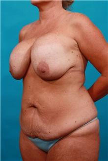 Tummy Tuck Before Photo by Michael Bogdan, MD, MBA, FACS; Grapevine, TX - Case 32264