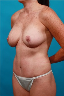 Tummy Tuck After Photo by Michael Bogdan, MD, MBA, FACS; Southlake, TX - Case 32350