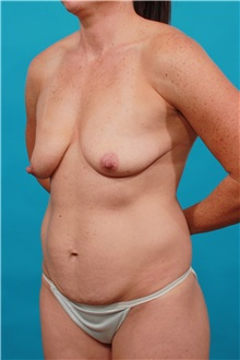 Tummy Tuck Before Photo by Michael Bogdan, MD, MBA, FACS; Southlake, TX - Case 32350